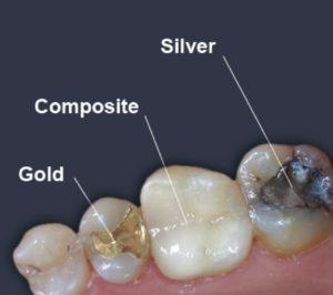 Dental fillings in Macquarie park
