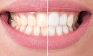 Best teeth whitening in Macquarie Park