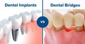 tooth implant vs bridge in Macquarie Park