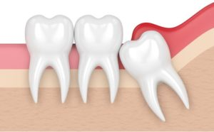 Wisdom teeth removal in Macquarie Park