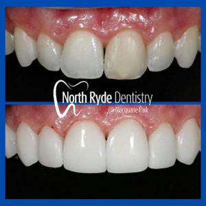 Emax BL3-LT by North Ryde Denistry