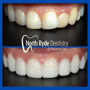 Estelite Sigma BW composite veneers by North Ryde Dentistry in Macquarie Park