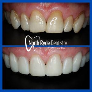 Herculite Flow XL2 by North Ryde Dentistry